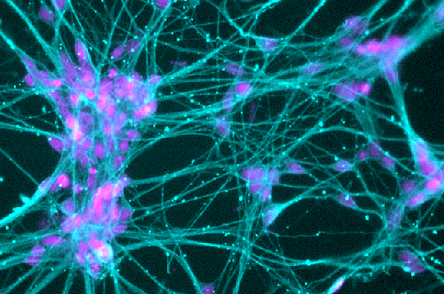 neurons_IPSC